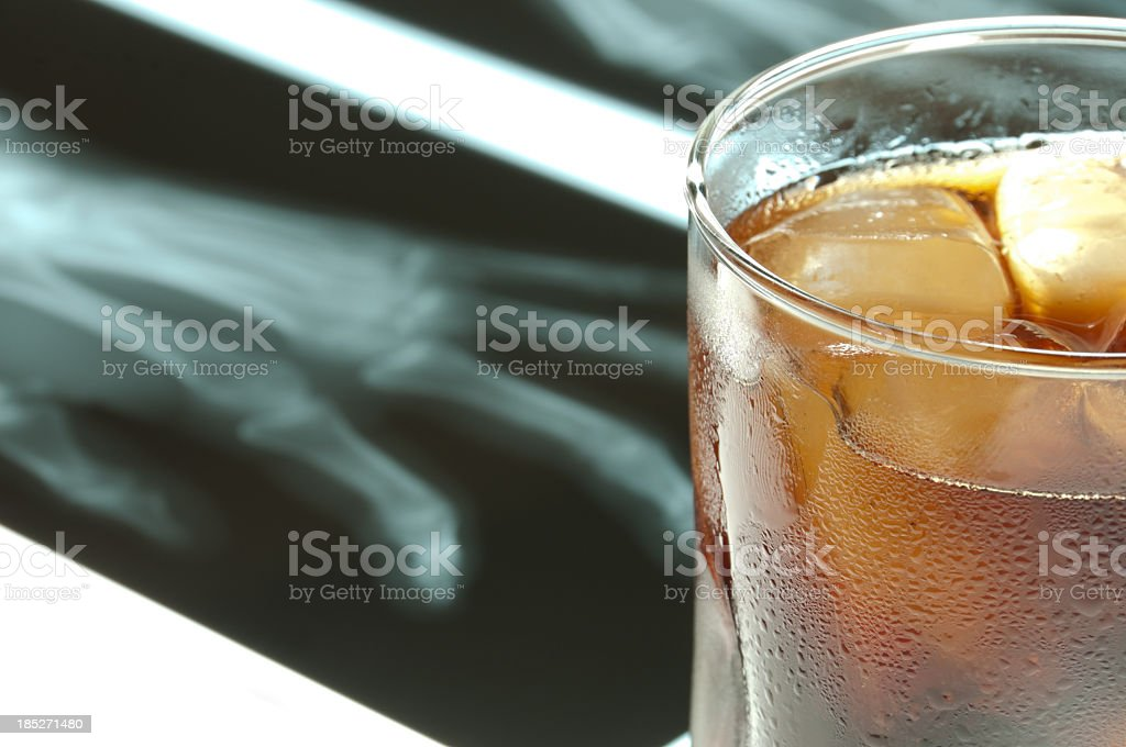 Alcohol and x-ray royalty-free stock photo