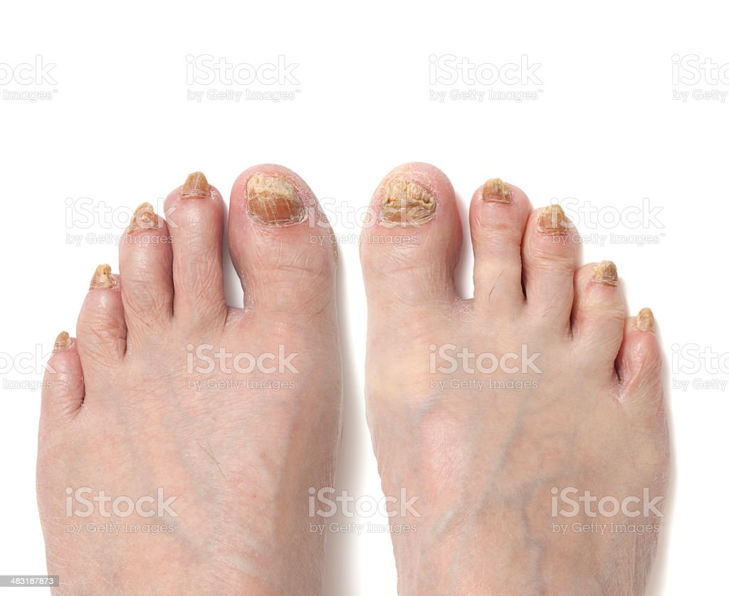 All Toes Have Fungal Disease on Pair of Feet stock photo