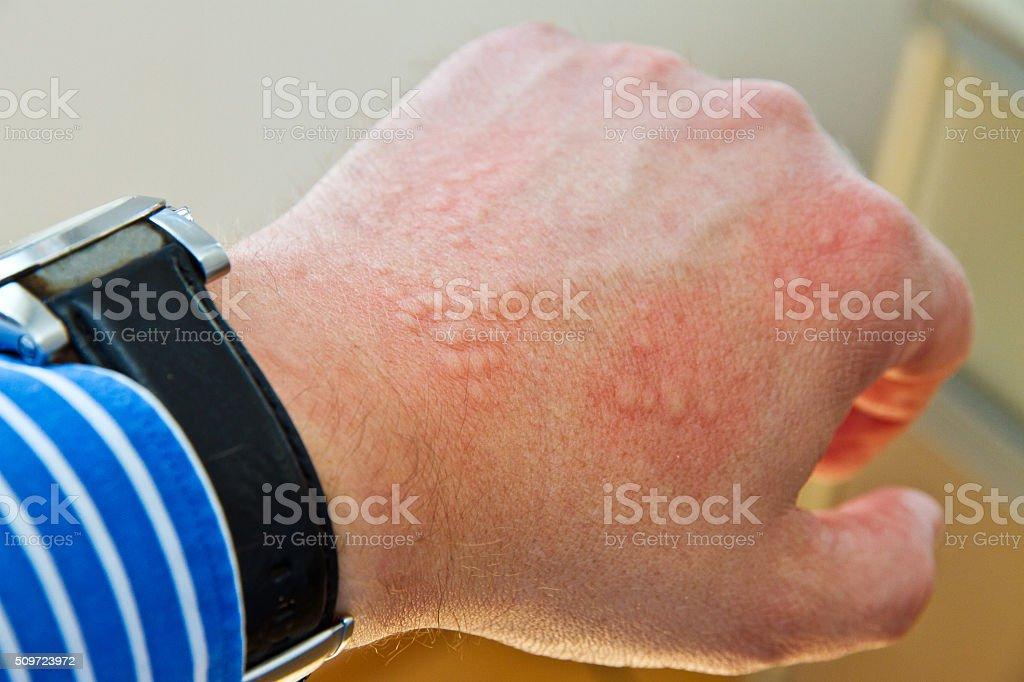 Allergic  reaction stock photo