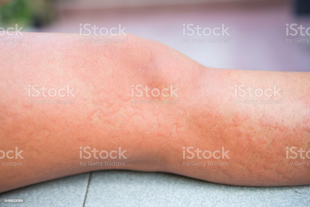 Allergic reactions caused by urticaria stock photo
