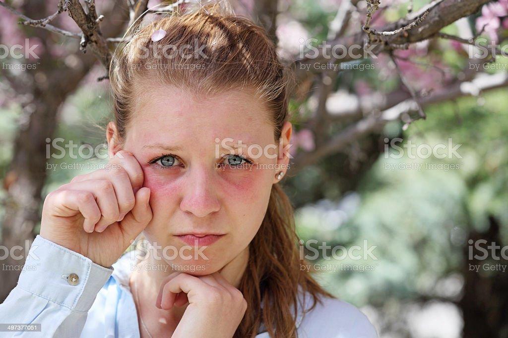 allergies stock photo