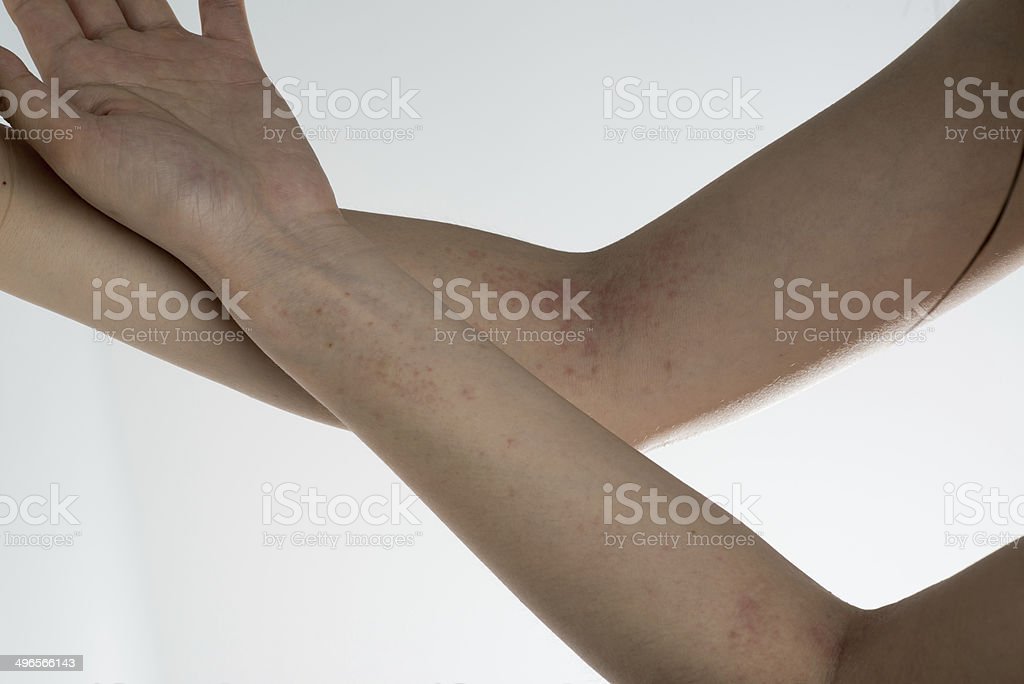 allergy ill skin on hand royalty-free stock photo