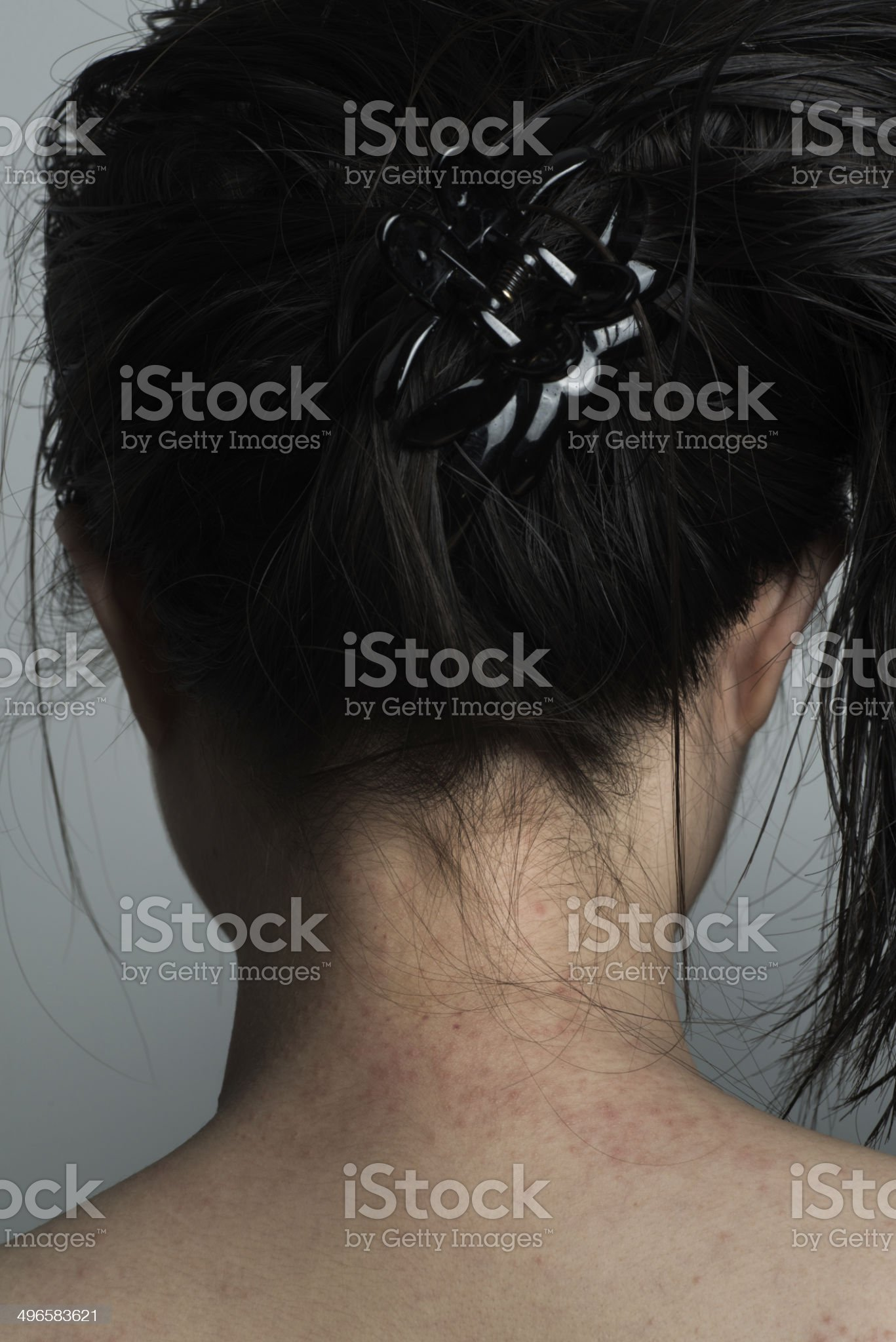 allergy ill skin on neck royalty-free stock photo