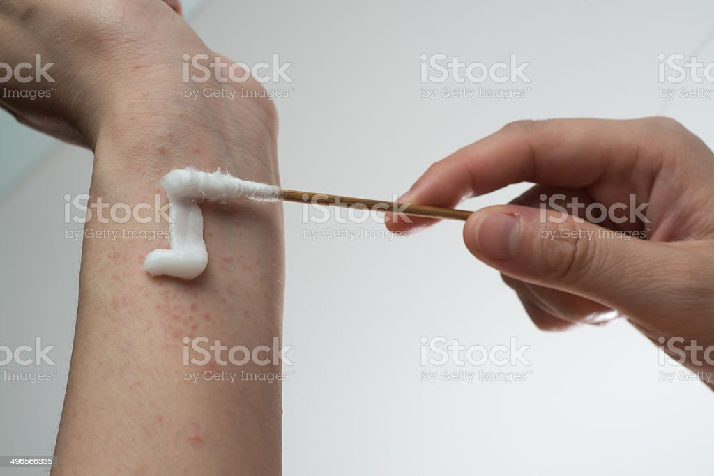 allergy ill skin with drug stock photo