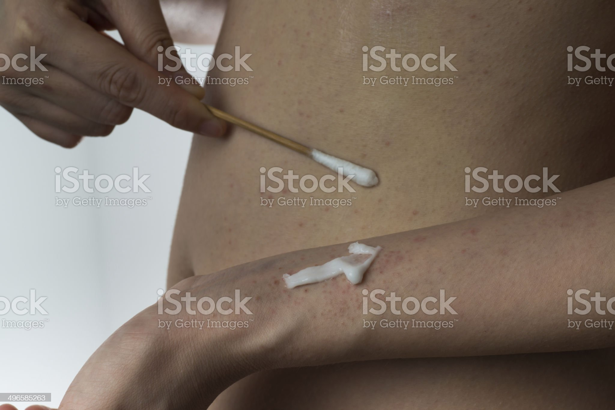 allergy ill skin with drug royalty-free stock photo