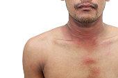 Allergy rash