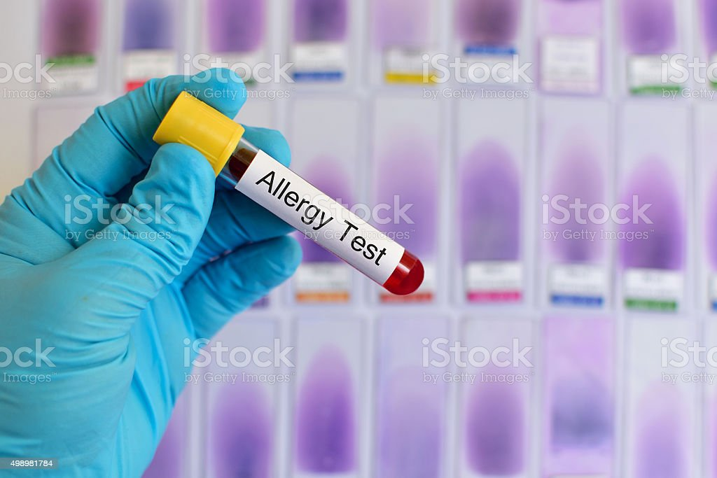 Allergy test stock photo