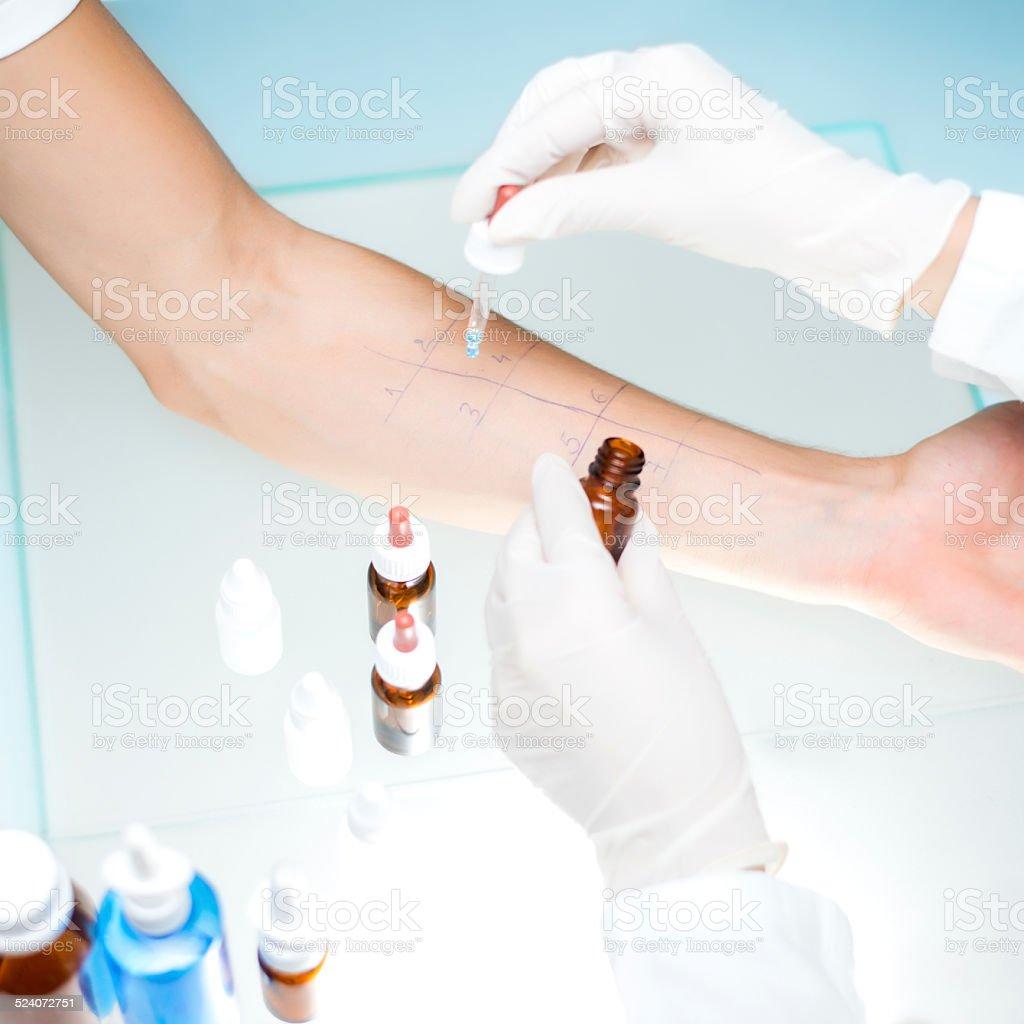 Allergy test stock photo