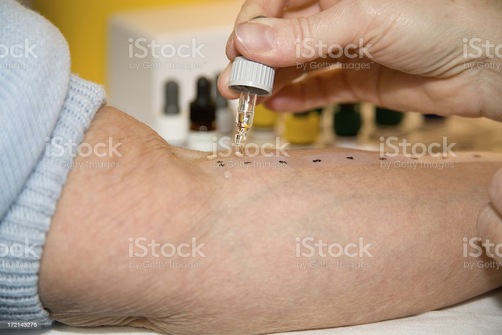 Allergy testing stock photo