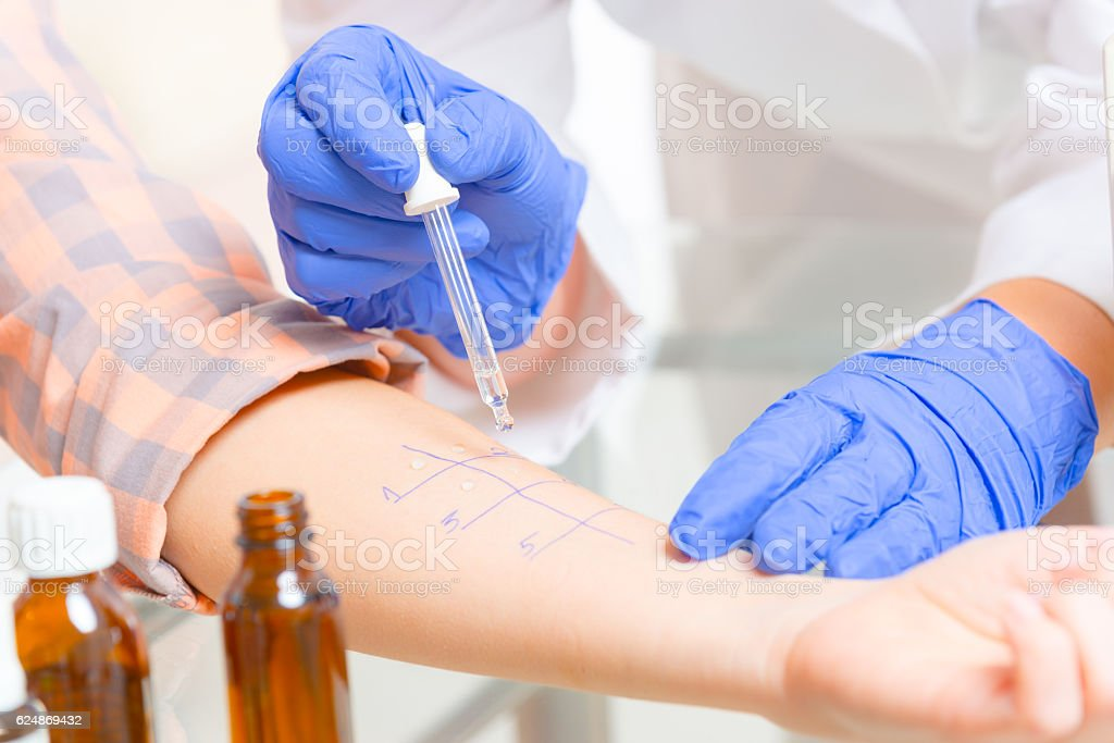 Allergy tests in laboratory stock photo