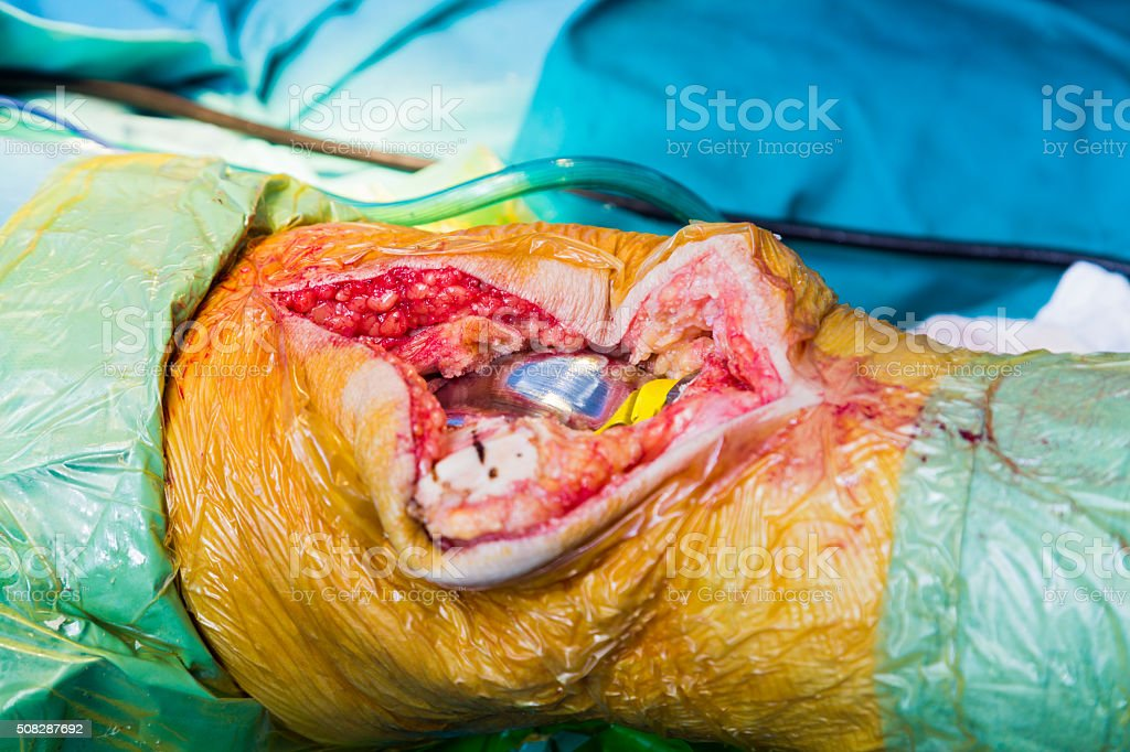 Almost ready knee joint stock photo