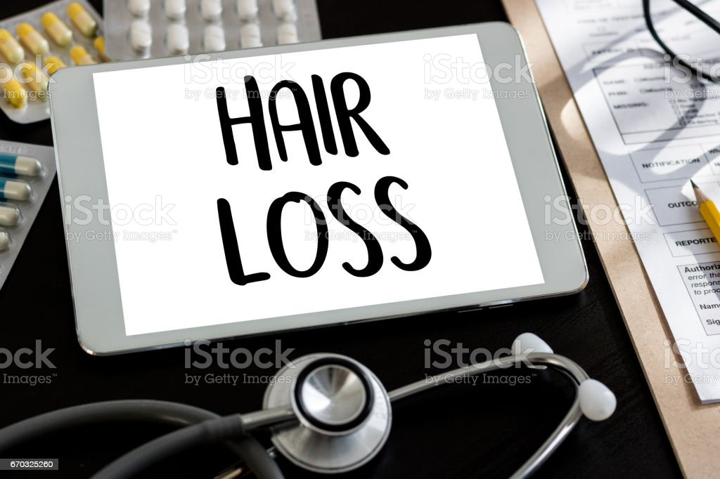alopecia air loss haircare medicine bald treatment , Hair loss symptoms ALOPECIA male head stock photo