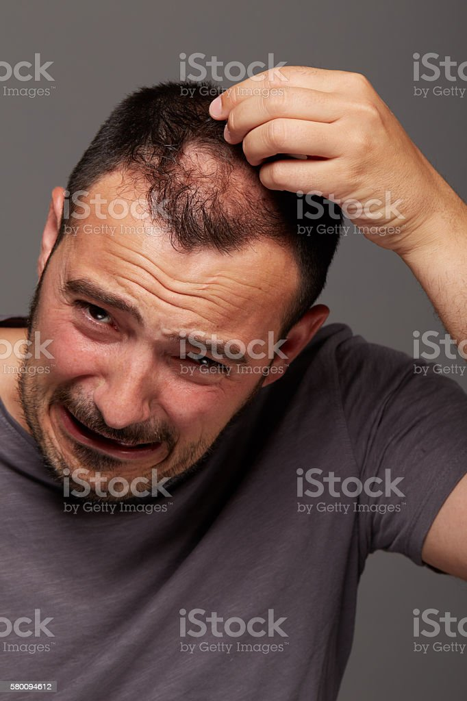 alopecia stock photo