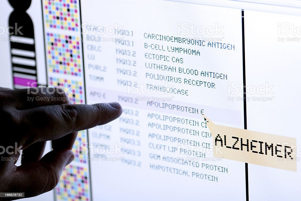 Alzheimer syndrome stock photo