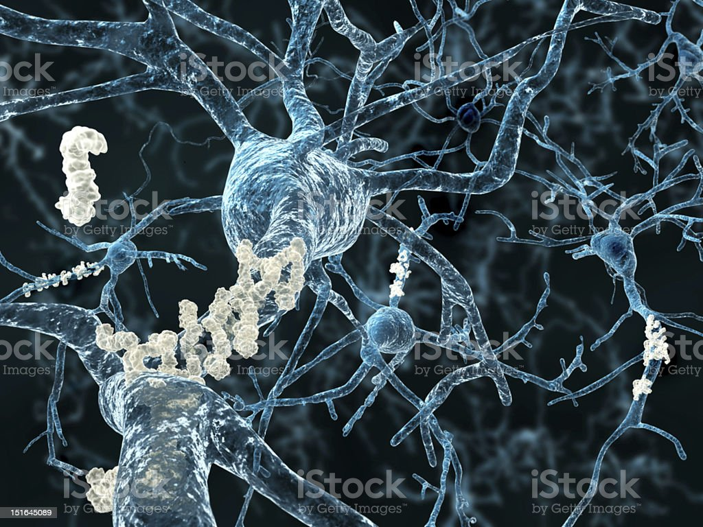 Alzheimer's disease - neurons with amyloid plaques stock photo