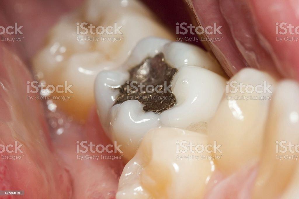 Amalgam filling royalty-free stock photo