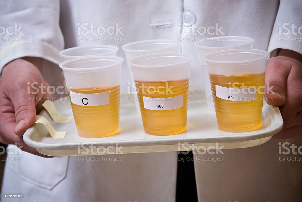 Amber color liquid in cups on plate stock photo