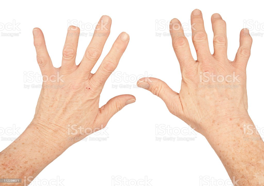 amputated finger and arthritis stock photo