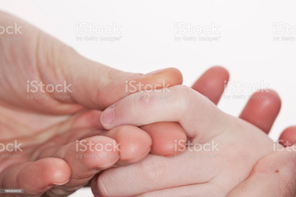 An adult holds the hand of a child with a macro wart stock photo