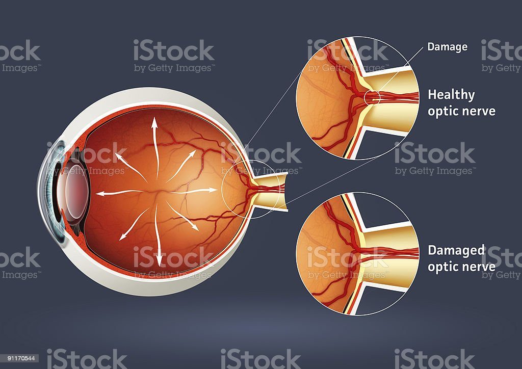 An animation of retinal detachment stock photo