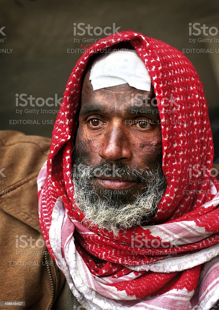 an Egyptian revolutionary injured by police stock photo