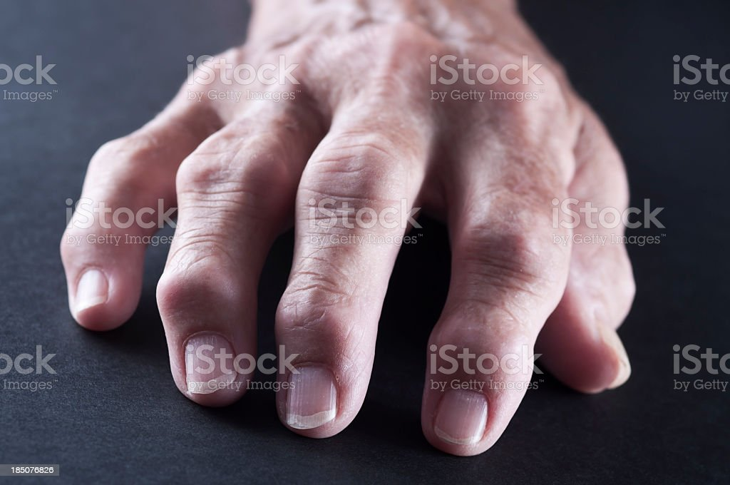 An elderly hand with Rheumatoid Arthritis stock photo