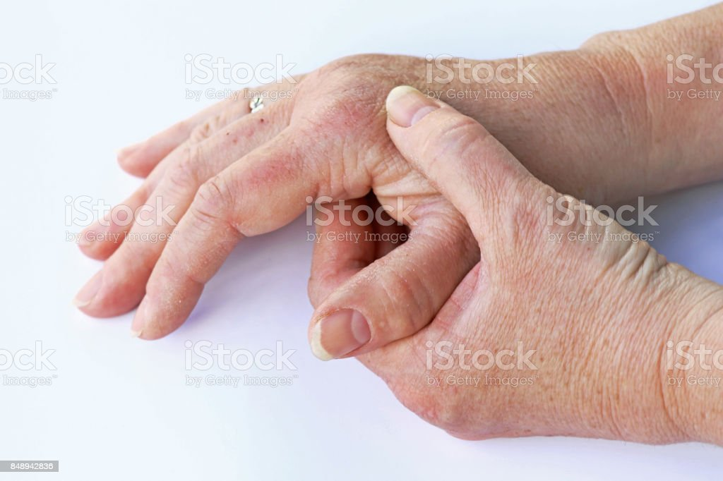 An elderly woman has pain in her hands stock photo