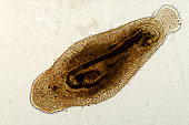 An image of A photo micrograph of flatworm