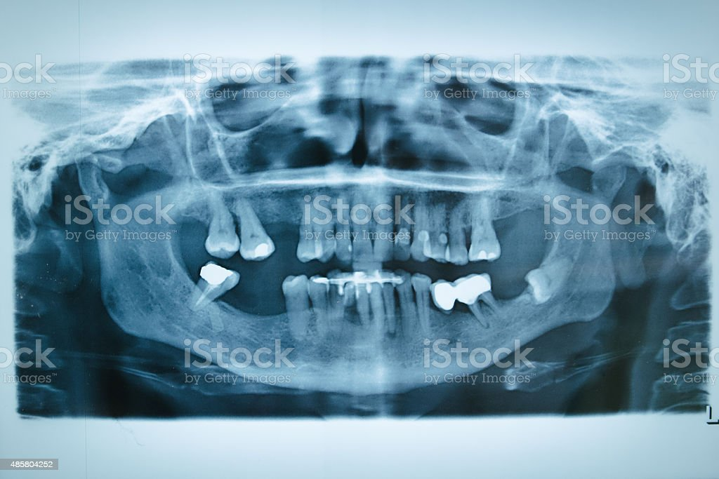 An X-ray image of all teeth stock photo