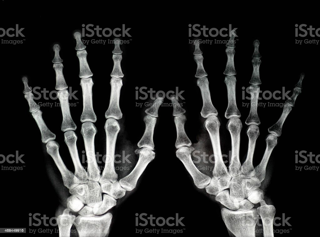 An x-ray of both hands with the fingers opened stock photo