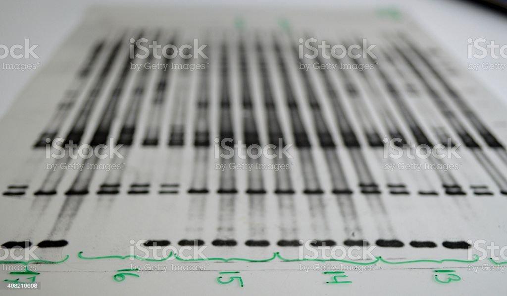 DNA analysis stock photo