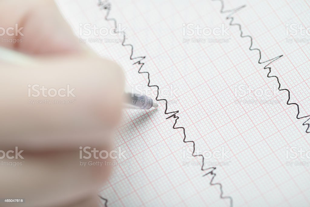 Analyzing of ECG. Hand with a pen on the ECG. stock photo