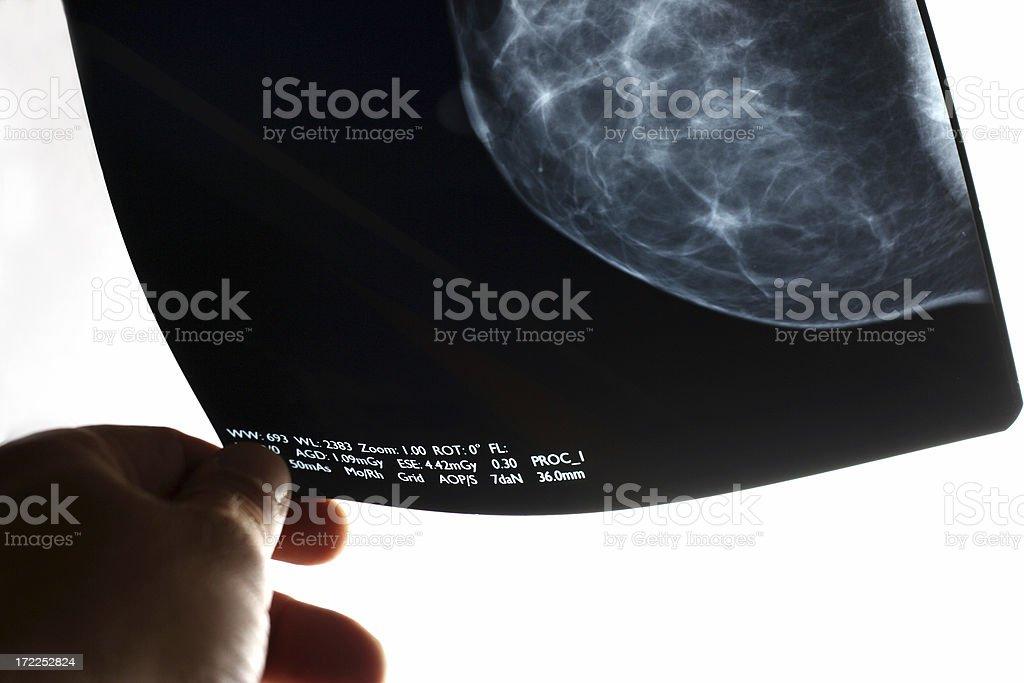 Analyzing the mammogram stock photo