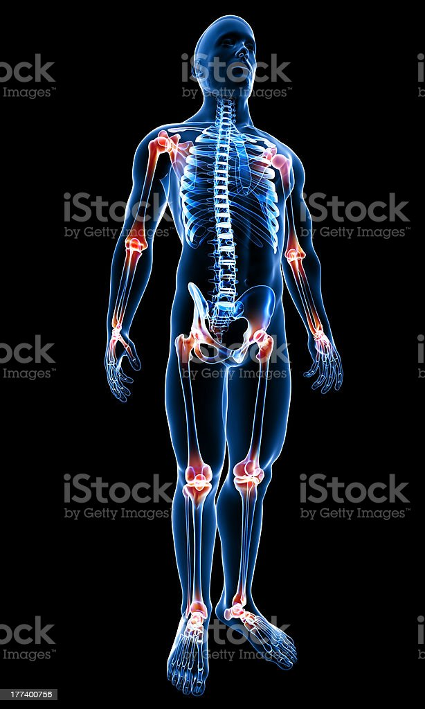 Anatomy of joint pain royalty-free stock photo