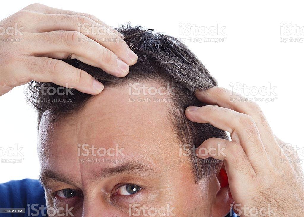 Androgenic Alopecia stock photo