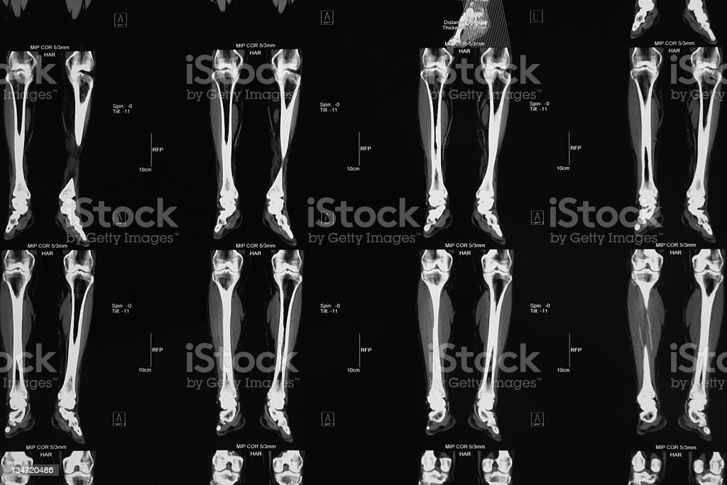 CT angiography of lower limb...Peripheral artery occlusive disease stock photo