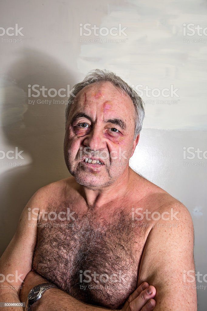 Angry mature man bruised boxer portrait close-up stock photo