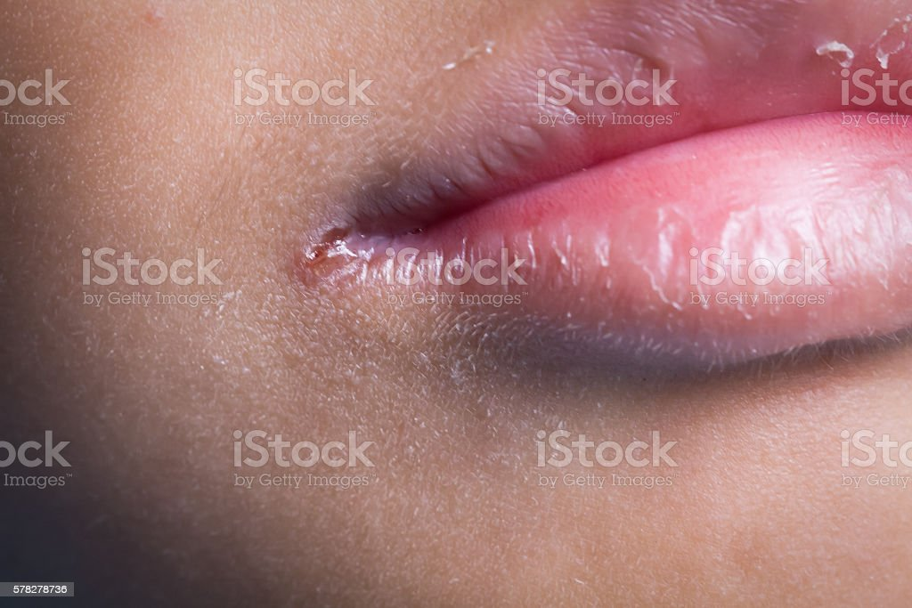 Angular cheilitis.Inflammation of corner mouth. Lack of vitamins stock photo