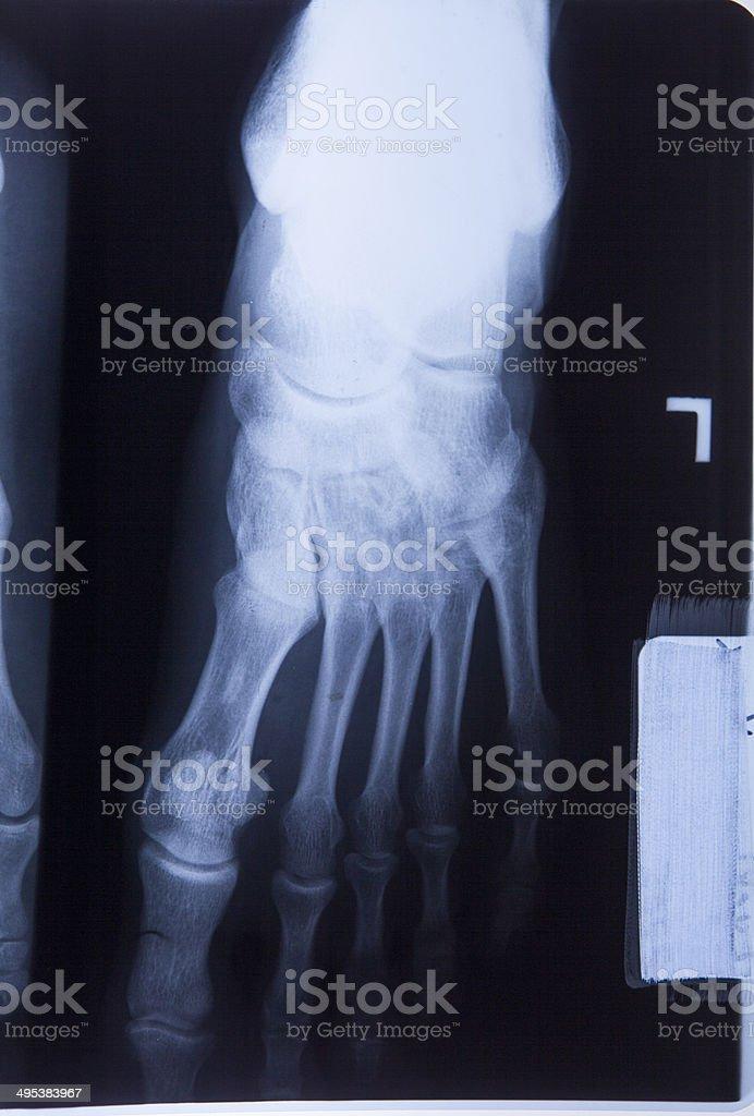 Ankle Feet Knee Joint Pain Xray Mri Photo Film stock photo 495383967 ...