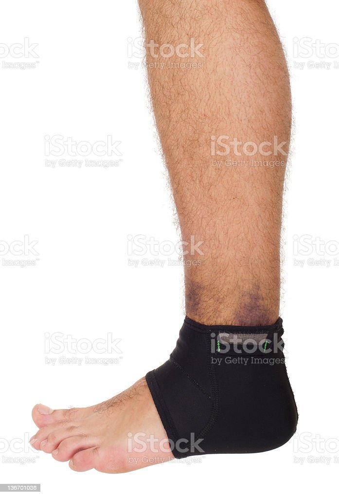 Ankle sprain support royalty-free stock photo