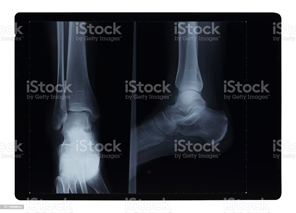 Ankle Xray Hairline Fracture stock photo