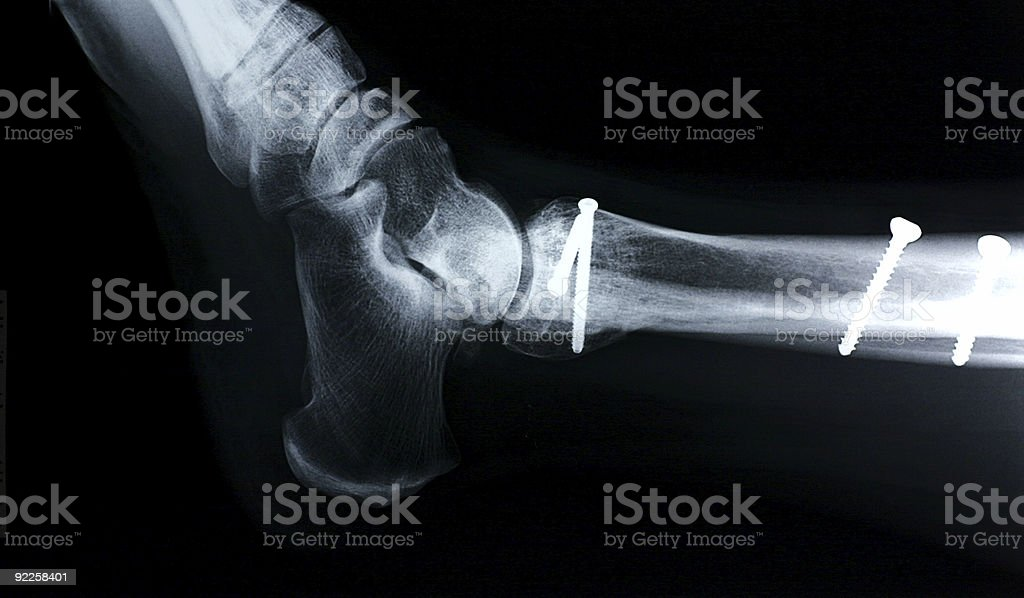 Ankle/side view royalty-free stock photo