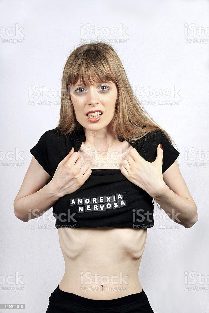 Anorexia nervosa royalty-free stock photo