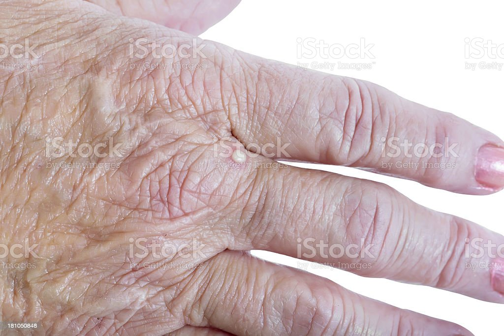 Ant bite on Senior woman's hand royalty-free stock photo