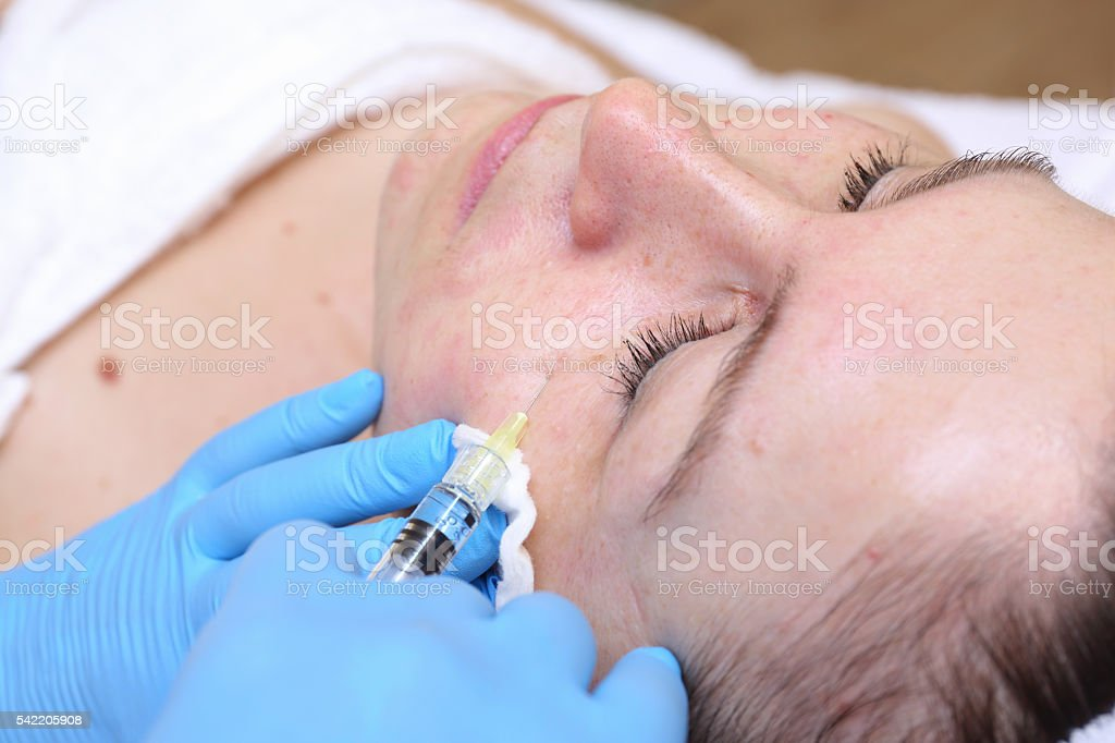 Anti-age injection therapy. Mimic wrinkles reduction. stock photo