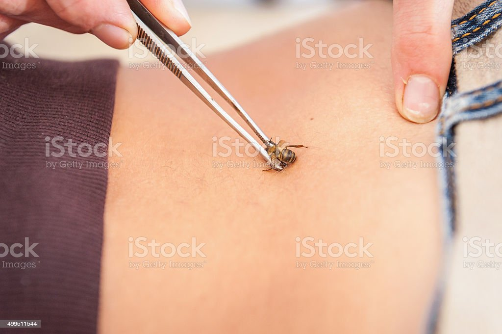 Apitherapy treatment stock photo