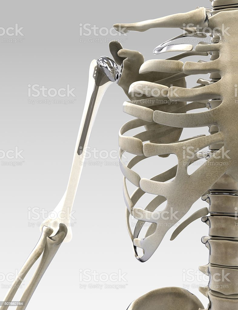 3D arm and shoulder prothesis illustration stock photo