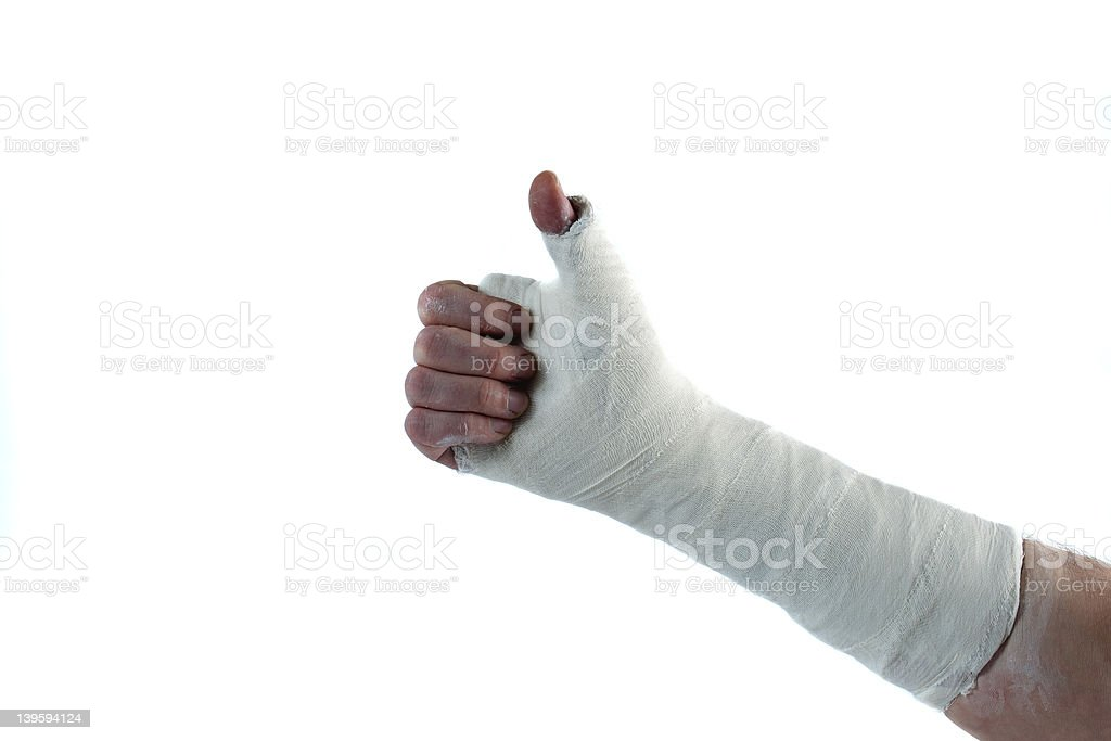 Arm cast stock photo
