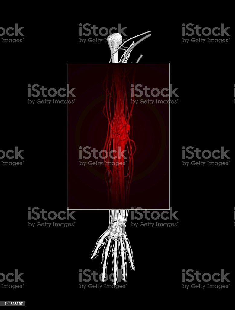 Arm Pain (XXL) royalty-free stock photo