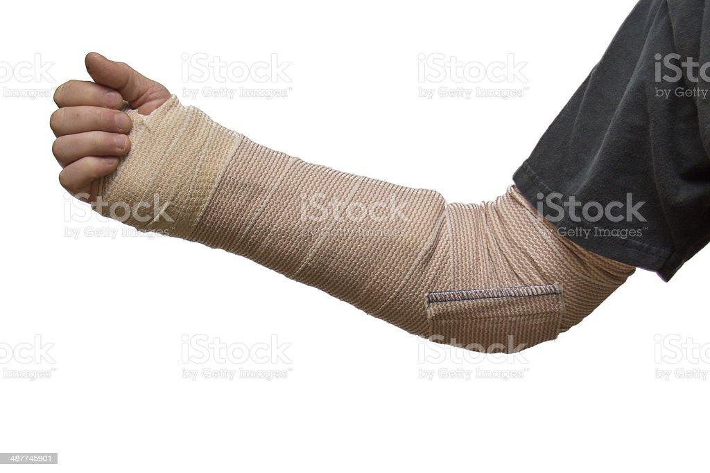 Arm splint stock photo